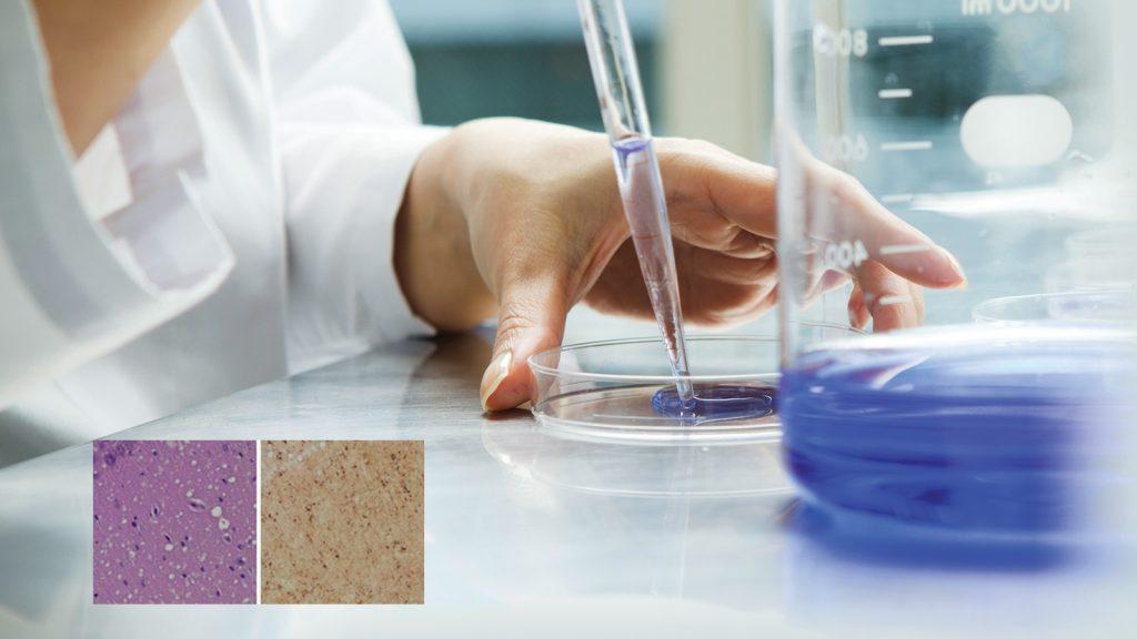 Yeni bir test, deri örneğinden  prion hastalıklarını teşhis ediyor